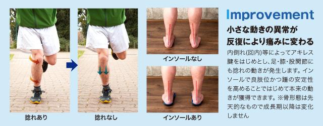 Improvement 小さな動きの異常が反復により痛みに変わる 内倒れ(回内)等によってアキレス腱をはじめとし、足・膝・股関節にも捻れの動きが発生します。 インソールで良肢位かつ踵の安定性を高めることではじめて本来の動きが獲得できます。 ※骨形態は先天的なもので成長期以降は変化しません