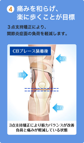 4.痛みを和らげ、楽に歩くことが目標 3点支持矯正により、関節炎症面の負荷を軽減します。