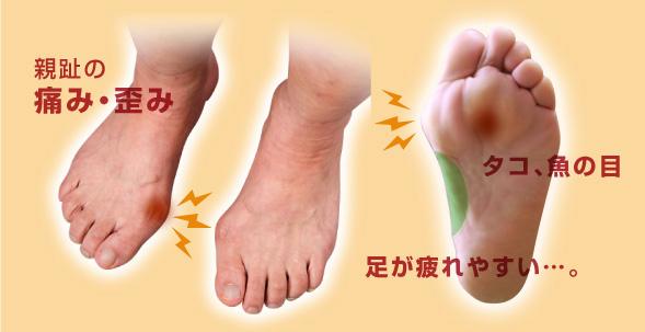 親趾の痛み・歪み タコ、魚の目 足が疲れやすい…。